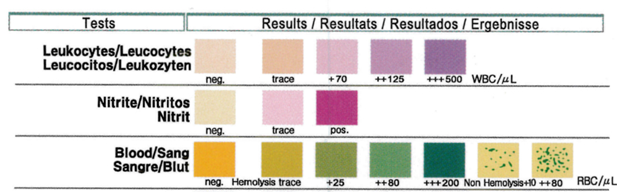 UTI home test strip